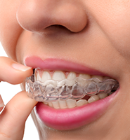 Clear Aligners - Almost Invisible Braces Plano, TX